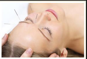 akupunktur2a